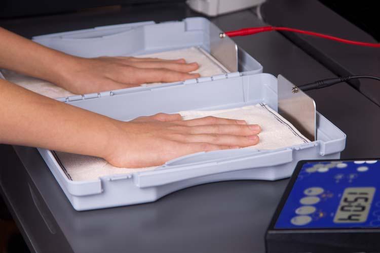 Hidrex Gs 400 Iontophoresis Machine Treats Hyperhidrosis